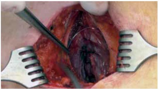 Preperitoneální uložení katétru<br> Fig. 2. Preperitoneal catheter placement