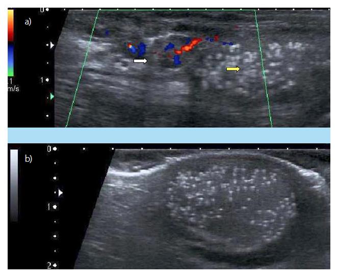 a, b. a) Dopplerovská sonografie varlete vlevo: varikokéla (bílá šipka), TM (žlutá šipka) (2012, pacient č. 1); b) USG pravého varlete s mikrolitiázou, malá hydrokéla (2012, pacient č. 1)<br> Fig. 2. a, b. a) Doppler ultrasound examination of the left testis: varicocele (white arrow), Testicular microlithiasis (yellow arrow) (2020, patient No 1). b) Ultrasonound examination of the right testis: Testicular microlithiasis, small hydrocele) (2020, patient No 1)