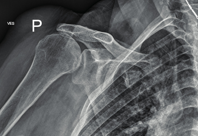 Hlavice pažní kosti po repozici zakloubena
