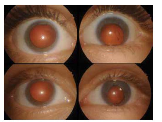Přední segment očí po zhojení úrazu (nahoře) a po operaci traumatické katarakty levého oka (dole)