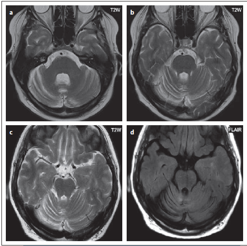 Pacient č. 6, u kterého byla diagnostikována progresivní multifokální leukoencefalopatie při kontrolní lumbální punkci, MR v době vyšetření i následná MR byla negativní, nález se objevil až po 6 měsících – atrofie mozečku (a, b), až po dalším měsíci již byla patrná i diskrétní ložiska ve vermis (c, d). Jednalo se o JCV (virus Johna Cunninghama) granulocytární neuronopatii.<br> Fig. 11. Patient No. 6 in whom progressive multifocal leukoencephalopathy was diagnosed from a control lumbar puncture; simultaneous MRI and follow-up MRI were negative, and a pathological fi nding was only evident after 6 months – cerebellar atrophy (a, b); after another month, discreet small lesions were apparent i vermis (c, d). This was JCV (John Cunningham virus) granulocytic neuronopathy.