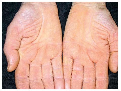 Acanthosis palmaris (tripe palm)