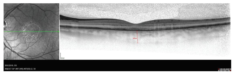 Snímek optické koherenční tomografie pacienta s chorioretinitidou se snížením reflexivity vrstvy retinálního pigmentového epitelu a zesílení cévnatky
