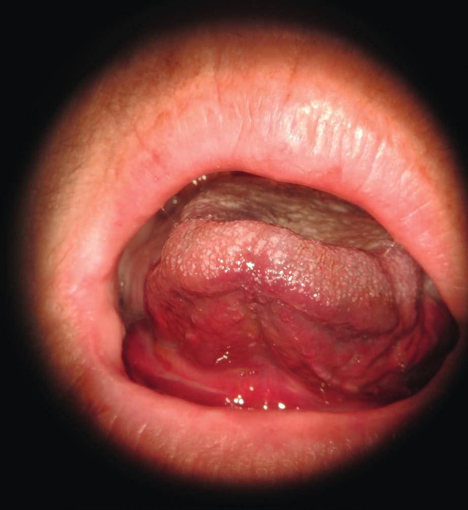 Hematom a edém spodiny ústní dutiny.