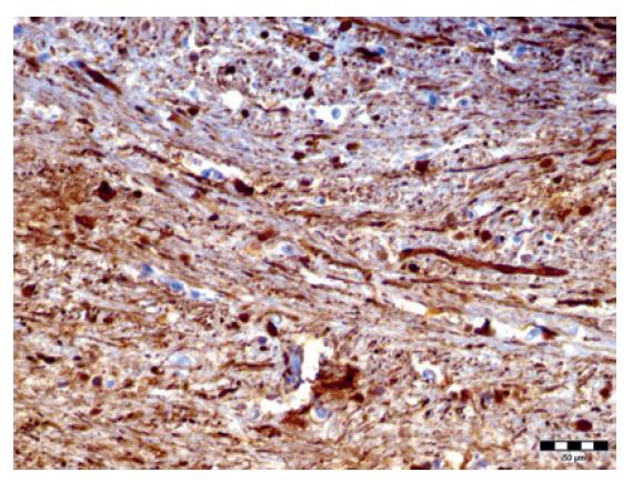 Degeneratívne zmeny axónov zachytené v ich horizontálnom priebehu (NF, zväčšenie 400x).