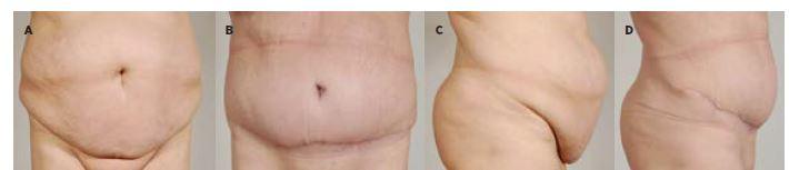 Obr. 6a Pacientka po redukci hmotnosti o 31 kg, s ventrální kýlou, před abdominoplastikou (léčebně-preventivní indikace)<br> Obr. 6b 1 rok po operaci<br> Obr. 6c Pacientka před operací<br> Obr. 6d 1 rok po operaci