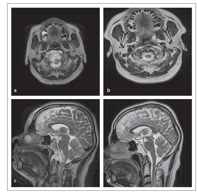 Fig. 2. Giant foramen magnum chordoma operated using a transoral approach – gross total resection was achieved.<br> Obr. 2. Obří chordom v oblasti foramen magnum operovaný transorálním přístupem – dosaženo celkové resekce.