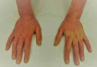 Eczema contactum allergicum manum (tiskárna – UV tvrzené akrylátové barvy)