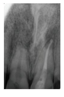 Koreňový kanálik zaplnený<br> biokeramickým sealerom<br> BioRoot™ RCS<br> a gutaperčou<br> Fig. 4<br> Root canal obturated<br> with bioceramic sealer<br> BioRoot™ RCS<br> and gutta-percha
