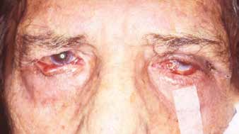 Change of position of eyelids as a consequence of granulomatous inflammation of the eyelids and conjunctivas