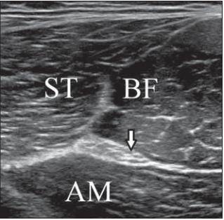 Transverse ultrasound image of the sciatic nerve and muscles in the dorsal thigh.<br> Obr. 1. Příčný UZ obraz sedacího nervu a svalů v dorzální části stehna.