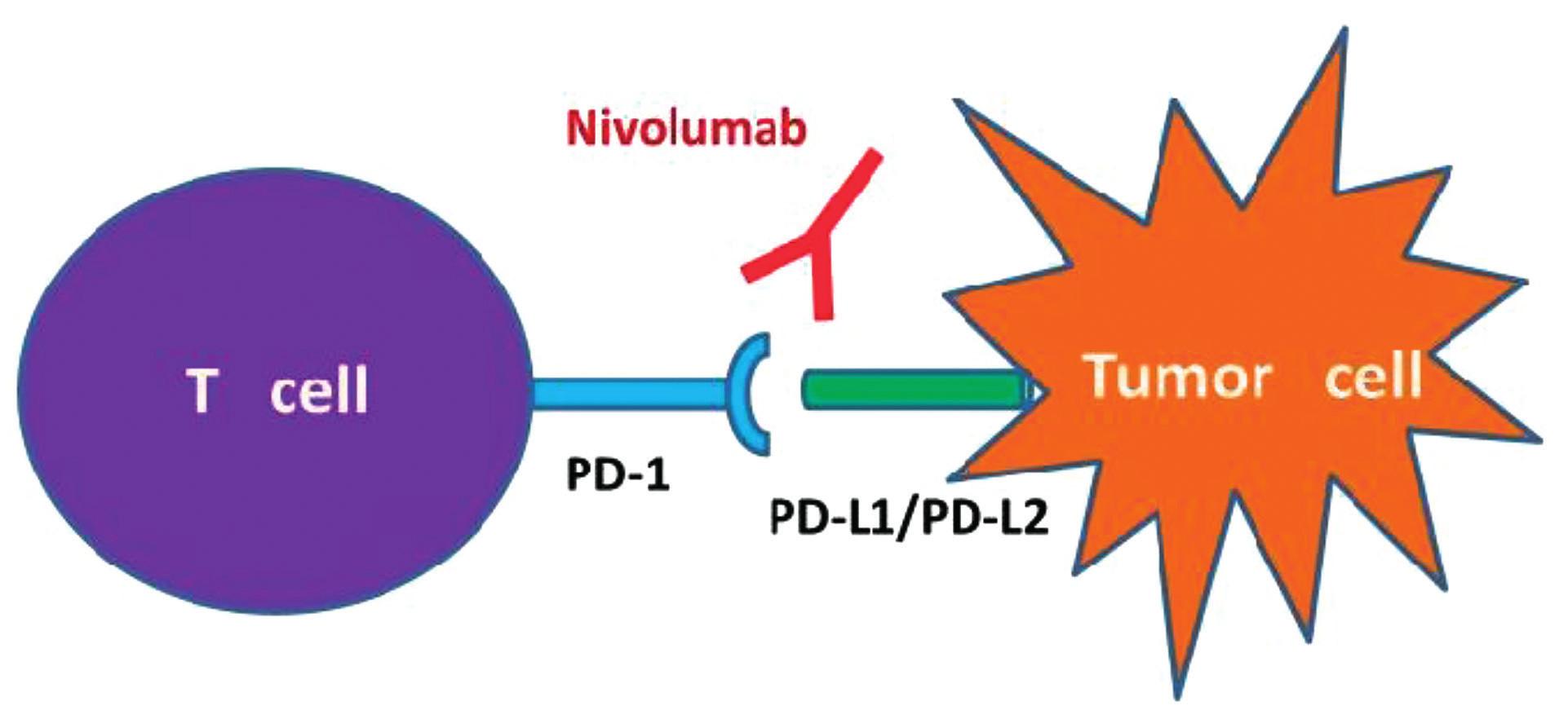 """Immune checkpoint 2 Nivolumab, """"check-point"""" inhibitor PD-1,mechanismus působení CPI Nivolumab je humánní monoklonální protilátka IgG4 fungující jako inhibitor """"check point"""" PD-1 (""""programmed death""""). Aktivuje protinádorovou imunitní odpověď T lymfocytů. Zabraňuje vazbě PD-1 na jeho ligandy PD-L1 a PD-L2 a tím blokuje přenos inhibičního signálu do T-lymfocytu. IgG4 – imunoglobulin G4.<br> (Upraveno podle Postow MA, Callahan MK, Wolchok JD, Blockade in cancer therapy. J Clin Oncol 2015;33(17):1974–1982)."""