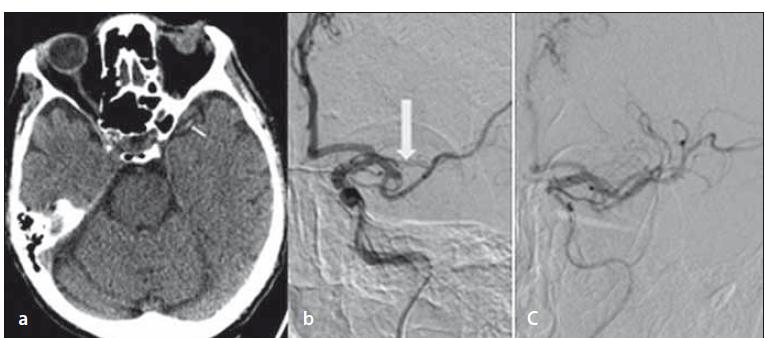 Opakované natívne vyšetrenie CT mozgu – dense artery sign a. cerebri media vľavo (šípka) (a); DSA – oklúzia M2 vľavo (šípka) (b); DSA – kompletná rekanalizácia po endovaskulárnej liečbe (c).<br> Fig. 2. Repeated non-enhanced brain CT – dens artery sign in the left middle cerebral artery (arrow) (a); DSA – occlusion of the left M2 (arrow) (b); DSA – complete recanalization after endovascular treatment (c).