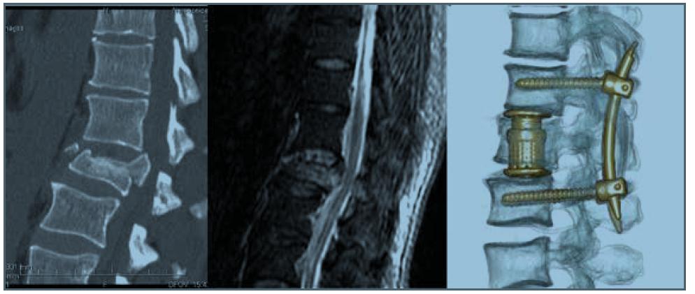 Tříštivá zlomenina L1 (A4) s obstrukcí v páteřním kanále a syndromem kaudy (N3) TL AOSIS – 9, řešena kombinovanou krátkou instrumentací<br> Fig. 3. Burst fracture of L1 (A4) with spinal cannal obstruction and cauda equina injury (N3) TL AOSIS – 9, treated by short combined instrumentation