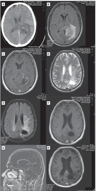 (A) Předoperační CT mozku s cystickou expanzí vlevo okcipitálně a perifokálním edémem. (B,C) Předoperační MR mozku s objemnou cystickou expanzí okcipitálně vlevo (FLAIR a postkontrastní T1). (D–G) Kontrolní MR (červen 2011) s nekolabovanou resekční dutinu (D-axiální T2 obraz, E-axiální FLAIR, F-T1 po kontrastní látce, axiální řez, G- sagitální subtrahovaný obrázek, tj. vzniklý odečtením T1 nativ od kontrastního T1 obrazu). Vyšetření prokazuje pouze lineární typ opacifi kace okraje resekční dutiny, který patří mezi benigní typ opacifi kace. Nebyl prokázán nodulární typ opacifi kace, který by svědčil pro přítomnost rezidua či recidivy tumoru. Dále jsou přítomné trakční změny vůči okcipitálnímu rohu levé postranní komory. (H) Kontrolní MR mozku po 9 letech (postkontrastní T1 obraz) bez jasného rezidua tumoru s postiradiačními změnami bílé hmoty.<br> Fig. 1. (A) Preoperative brain CT with cystic expansion in the left occipital lobe with perifocal edema. (B,C) Preoperative brain MRI with cystic expansion in the left occipital lobe (FLAIR and post-contrast T1). (D–G) Control MR (June 2011) with non-collapsed resection cavity (D-axial T2 image, E-axial FLAIR, F- postcontrast T1, axial, G-sagittal subtracted image, i.e. resulting from subtracting T1 native from the contrast T1 image). The examination shows only linear type of opacification of the resection cavity edge, which belongs to a benign type of opacifi cation. No nodular type of opacifi cation has been demonstrated to indicate the presence of tumor residue or recurrence. Furthermore, traction changes are present relative to the occipital corner of the left lateral ventricle. (H) Control brain MRI after 9 years (post-contrast T1 image) without clear tumor residuum with post-radiation changes in the white matter.
