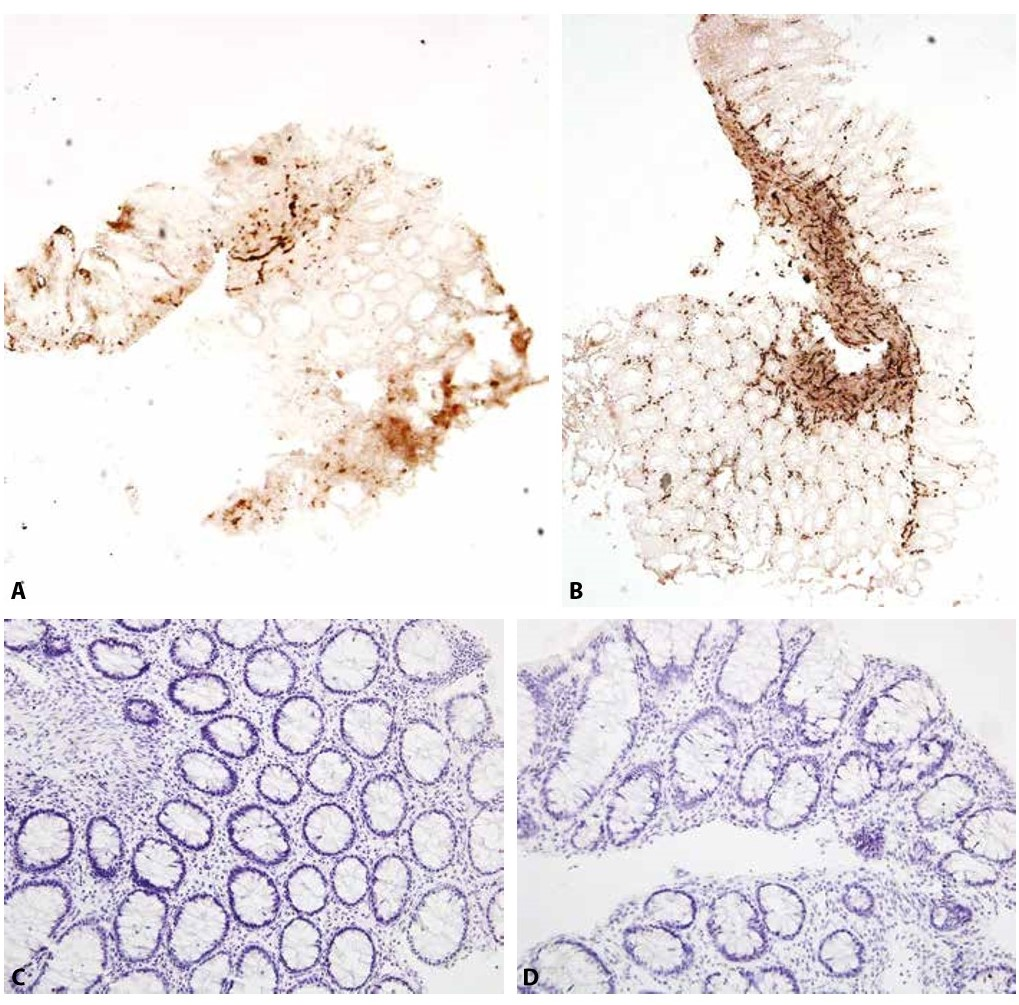 Stejný pacient s HN ve věku 14 dní (A, C) a 2 měsíců (B, D).<br> A: Acetylcholinesterázová reakce jen slabě pozitivní v krátkém úseku muscularis mucosae, v lamina propria je reakce negativní (iso-ACHE 40x).<br> B: Acetylcholinesterázová reakce pozitivní v muscularis mucosae i lamina propria (iso-ACHE 40x).<br> C: Negativní imunohistochemický průkaz kalretininu (200x).<br> D: Negativní imunohistochemický průkaz kalretininu beze změn (200x).