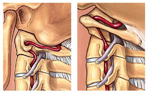 Rotácia krku spôsobuje hlavne v oblasti okcipitálno– atlanto–axiálneho spojenia natiahnutie a kolienkovité ohnutie vertebrálnej artérie.