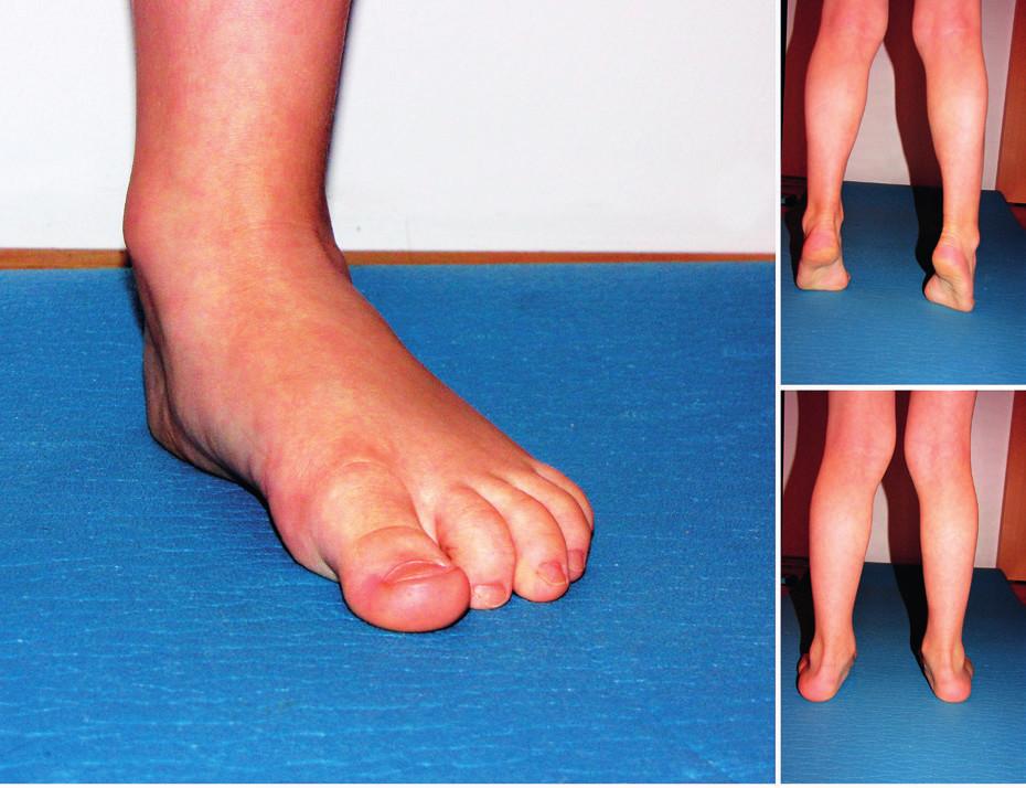 Vyšetření plochonoží – ilustrační foto plochá noha (archiv autorky).