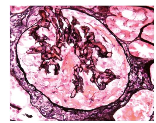 Biopsie ledviny, zachycený glomerulus je částečně postižen sklerotizací, je vidět fibrózní srpek (1), není přítomný polymorfonukleární infiltrát, který by znamenal aktivní postižení
