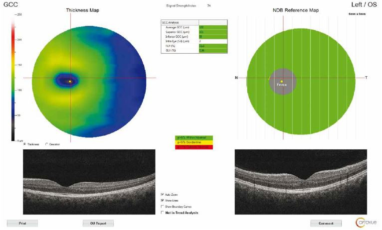 Optical coherence tomography output of ganglion cell complex thickness measurement of a patient with idiopathic intracranial hypertension. GCC – ganglion cell complex; NDB – normative database<br> Obr. 3. Výsledek měření tloušťky komplexu gangliových buněk pomocí optické koherentní tomografie u pacienta s idiopatickou intrakraniální hypertenzí. GCC – komplex gangliových buněk; NDB – normativní databáze