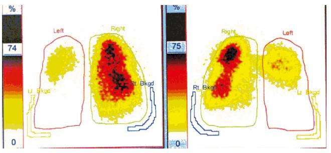 Scintigrafie plic, SPECT. Bilaterální plicní embolie: rozsáhlý defekt perfuze v celém dolním laloku levé plíce a v části horního. Vpravo defekt v menším okrsku ve středním laloku ventrálně