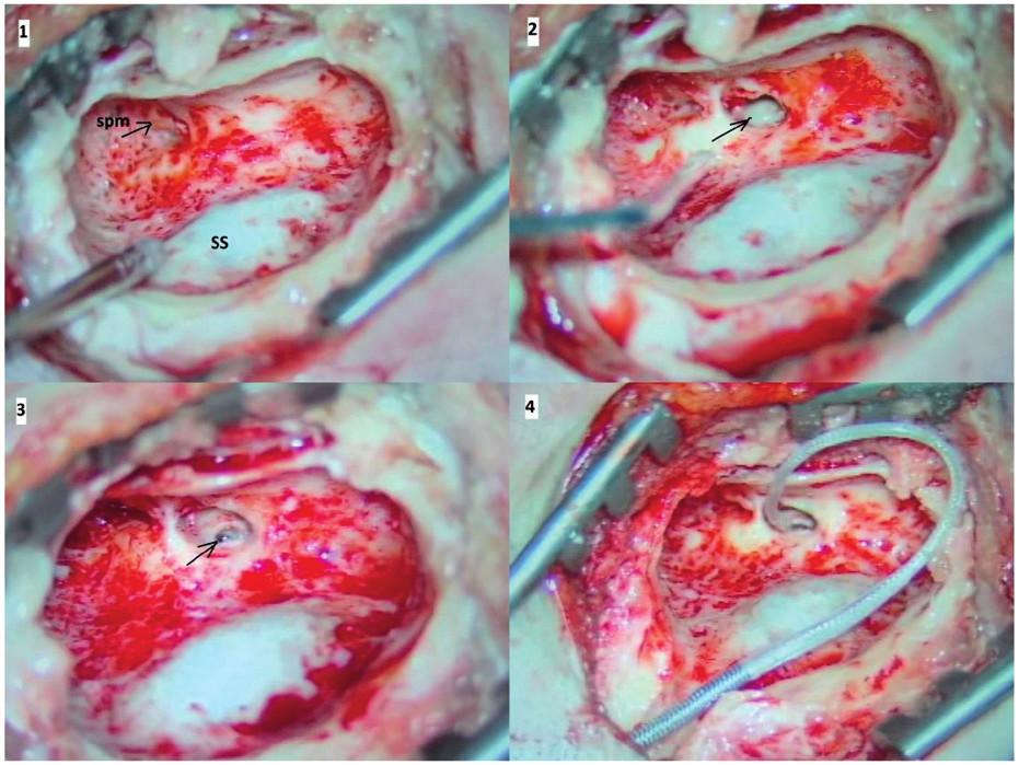 Kochleární implantace.<br> Legenda: 1- anstromastoidektomie se skeletizací esovitého splavu (SS) a identifikací krátkého raménka kovadlinky (spm), 2 - zadní tympanotomie, šipkou označeno promontorium s převisem kulatého okénka, 3 - stav po snesení převisu kulatého okénka, šipkou označena plně vizualizovaná sekundární membrána, 4 - inzerovaný elektrodový svazek přes okrouhlé okénko.