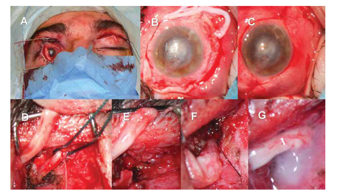 Nepřímá neurotizace rohovky pravého oka za využití štěpu surálního nervu a kontralaterálního supraorbitálního nervu.<br> Nález po protažení štěpu surálního nervu – patrný konec štěpu na povrchu postiženého pravého oka, štěp prochází horním víčkem pravého oka, následně podkožním tunelem na levou stranu, kde je patrný jeho druhý konec (A). Preparace jednotlivých fasciklů na povrchu postiženého oka, stav před fixací fasciklů ke skléře (B). Nález po přišití nervových fasciklů štěpu a jejich krytí bulbární spojivkou (C). Podvázaný supraorbitální nerv na zdravé straně, v horním levém rohu je patrný konec nervového štěpu (D). Přerušení supraorbitálního nervu na zdravé straně (E). End-to-end anastomóza mezi supraorbitálním nervem a štěpem surálního nervu (F). zajištění anastomózy fibrinovým tkáňovým lepidlem před uzavřením rány (G)