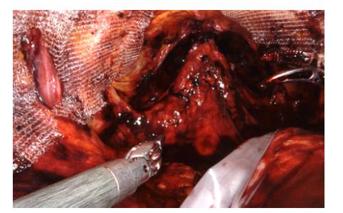 Pohled do pánve na konci operace, po obou stranách patrná síťka<br> Fig. 9. View into the pelvis at the end of the operation, mesh is visible on both sides