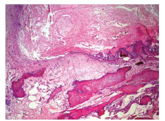 Depozícia kalciových solí do okolia prasknutého Meckelovho divertikula (hematoxylín-eozín, zväčšenie 40x).