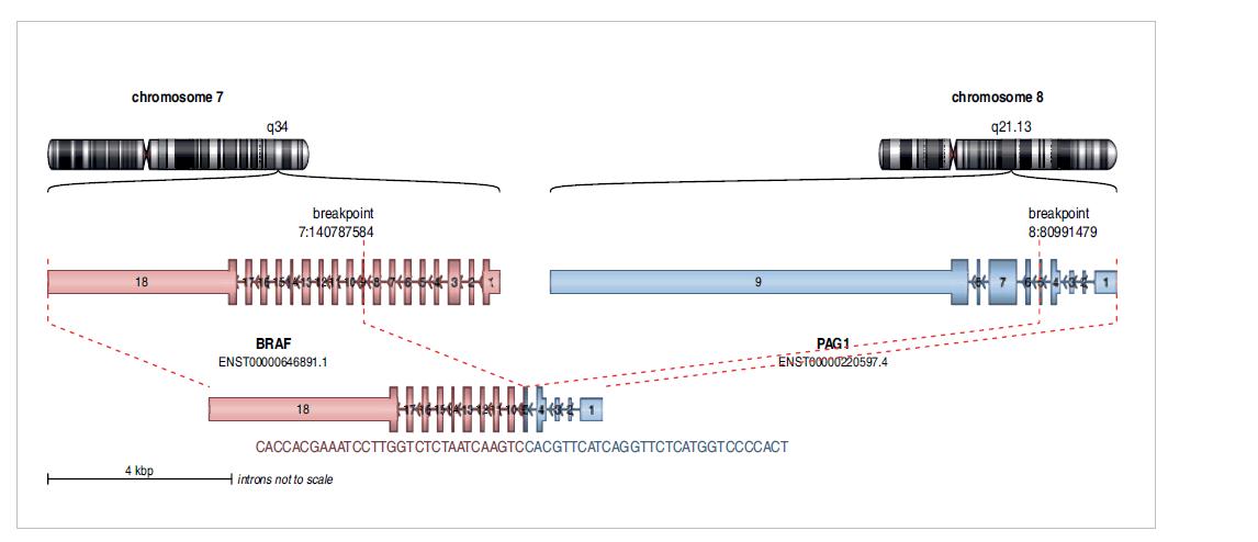 Nově diagnostikovaný fúzní gen PAG-BRAF u dětské pacientky s low-grade gliomem.