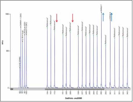 Vyhodnocení MLPA softwarem Coff alyser.net, pacientka s homozygotní delecí exonů 7 a 8 genu SMN1 a třemi kopiemi SMN2, MLPA kit P060.<br> Fig. 4. MLPA analysis using Coff alyser.net software; a patient with a homozygous deletion of exons 7 and 8 of the SMN1 gene and three copies of the SMN2 gen; MLPA kit P060.