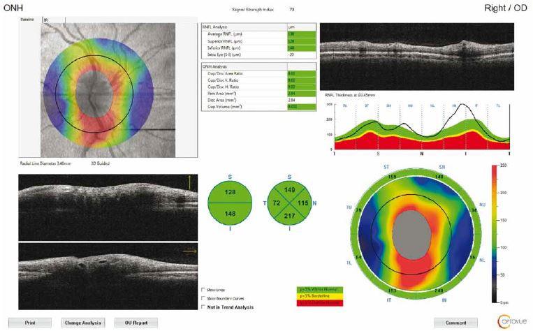 Optical coherence tomography output of peripapillary retinal nerve fibre layer thickness measurement of a patient with idiopathic intracranial hypertension. Circular scan with a 3.4-mm diameter centring optic nerve head can be seen in fundus image.<br> Obr. 1. Výsledek měření tloušťky peripapilární vrstvy nervových vláken sítnice pomocí optické koherentní tomografie u pacienta s idiopatickou intrakraniální hypertenzí. Na snímku očního pozadí je vidět kruhový sken o průměru 3,4 mm se středem v terči zrakového nervu.