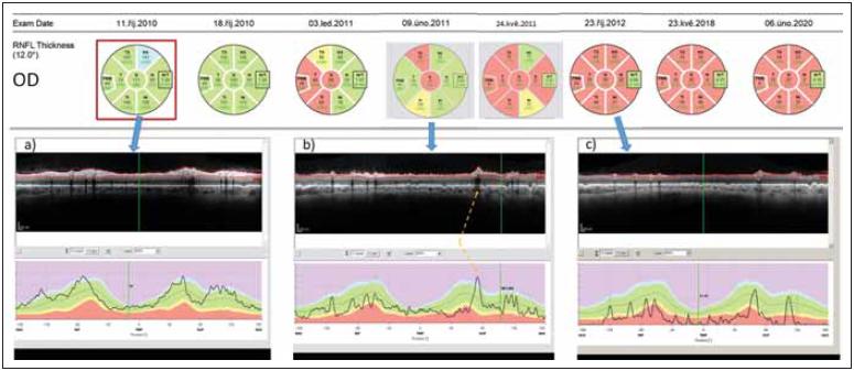 Longitudinální sledování tloušťky RNFL v peripapilární oblasti pravého oka pomocí optické koherenční tomografi e u pacientky s AQP4-IgGpozNMOSD. V průběhu sledování proběhly dvě epizody zánětu očního nervu – na počátku října 2010 a v únoru 2011. (a) ukazuje nález v akutní fázi zánětu. (b) ukazuje nález po 4 měsících. Tloušťka RNFL v jednotlivých segmentech je sice ve většině segmentů v mezích normy (kódována zeleně), avšak křivka RNFL na grafu dole je jasně oploštělá a vykazuje pokles ve všech segmentech. Na mírném zvýšení tloušťky RNFL oproti předchozímu vyšetření se podílí edém při právě probíhající recidivě optické neuritidy ve vyšetřovaném oku. Místo, kde křivku RNFL zvedá céva probíhající na povrchu sítnice, je označeno žlutou šipkou. (c) ukazuje stav sítnice rok po počátku prvního zánětu. RNFL je natolik ztenčeno, že je na několika místech prakticky neměřitelné.<br> Fig. 2. Longitudinal follow up of peripapillary RNFL thickness (right eye) in a patient with AQP4-IgGposNMOSD. Two episodes of optic neuritis occurred during the follow-up – in October 2010 and in February 2011. (a) shows fi nding in the acute phase of optic neuritis. (b) shows fi ndings 4 months later. The thickness of RNFL still falls within normal values in most peripapillary segments (coded in green) however, the curve of RNFL thickness has been fl attened and shows a loss of RNFL in all segments. A slight increase in RNFL thickness on this day in comparison with the prior exam is caused by edema caused by the second optic neuritis in the right eye. The blood vessels artifi cially increase the RNFL thickness (marked by a yellow arrow). (c) shows retinal fi ndings a full year after the onset of fi rst optic neuritis in the eye. RNFL has been thinned and cannot be reliably quantifi ed.