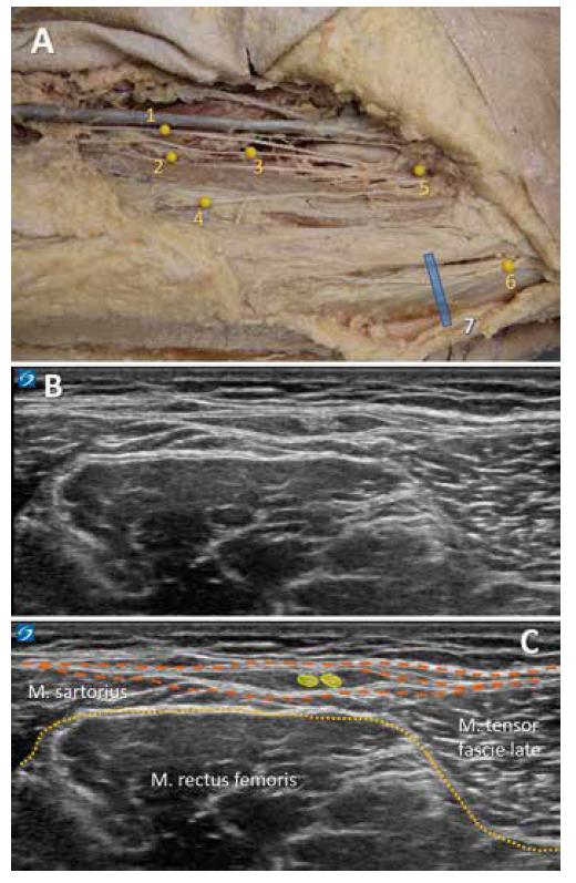 Identifikace n. cutaneus femoris lateralis ve FFFT A: 1.–5. větve n. femoralis, 4. n. cutaneus femoris lateralis, 7. poloha sondy. B: nativní obraz FFFT. C: kolorovaný UZ obraz se zvýrazněním fascia lata (oranžová barva) a svalové fascie (okrová barva), NCFL označen žlutě