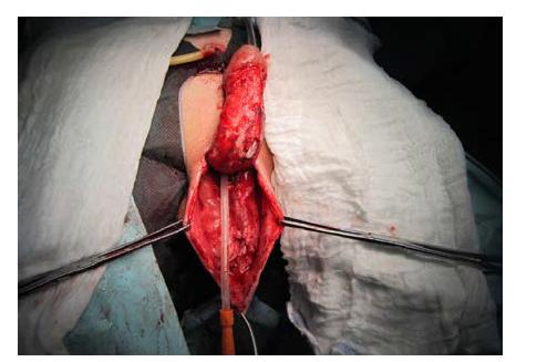 Stav po snesení granulační tkáně k úrovni Buckovy fascie, příprava ventrální plochy skrota k odběru živených laloků k vytvoření kompletního kožního krytu penisu<br> Fig. 6. The state after ablation of granulation tissue to the level of Buck's fascia; preparation of the ventral surface of the scrotum for the harvest of vascular skin flaps to create a complete skin covering of the penis