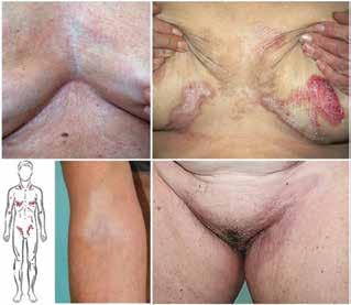 Schéma predilekční lokalizace na přední straně těla LS extragenitalis, bělavé lesklé zřasené plochy sub- a intermammárně, v kubitách, rýze třísel a okolí, na hrudi přecházející až ve vyvýšená drsná bělavá ložiska s hemoragiemi, jinde přechází v reziduální hyperpigmentace