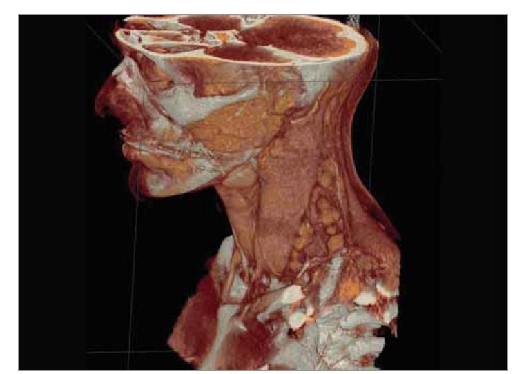 CT sken krku odhaľuje zväčšené lymfatické uzliny pozdĺž m. sternocleidomastoideus vľavo, s najväčšom uzlinou veľkosti 22 × 10 mm (3D rekonštrukcia).<br> Fig. 1. CT scan of the neck reveals enlarged lymph nodes along the sternocleidomastoid muscle on the left, with the largest node measuring 22 × 10 mm (3D reconstruction).