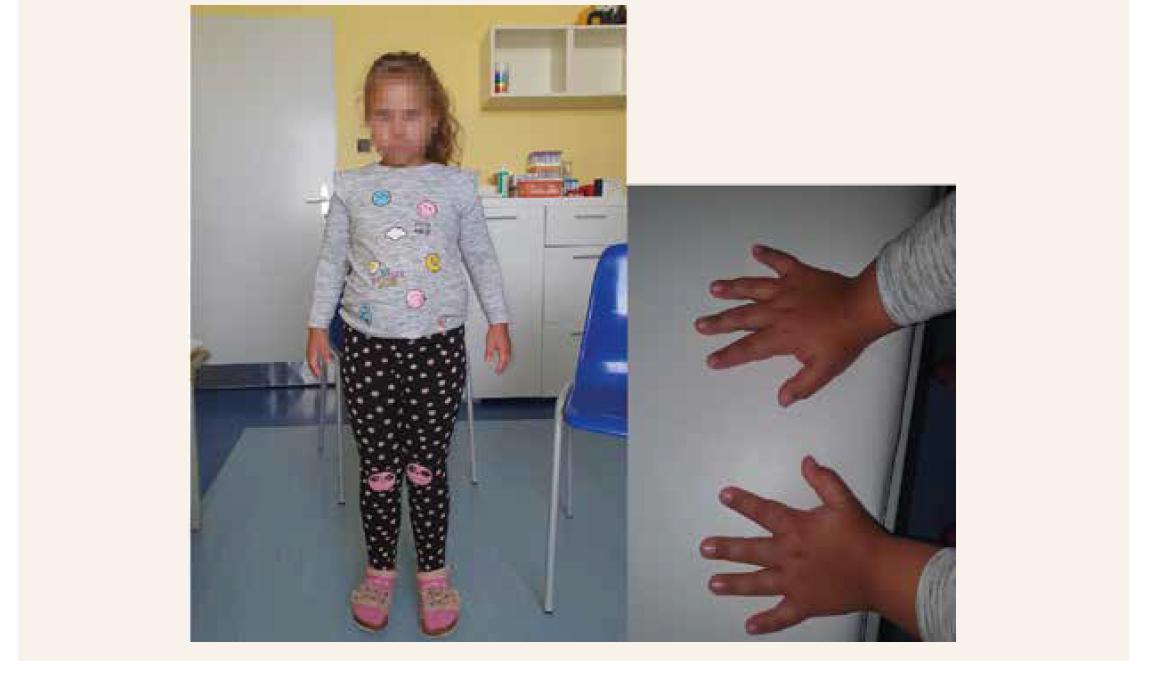 Klinické znaky 8-ročnej probandky: hyperlordóza, prominujúce brucho, lordotická chôdza, mierna dysmorfia tváre, diskrétne širší koreň nosa, výrazné čelo, nízko posadené uši, hypertelorizmus, epikanty, klinodaktýlia, genua valga , krátke prsty