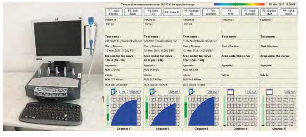 Přístroj Multiplate + výsledek standardního testu