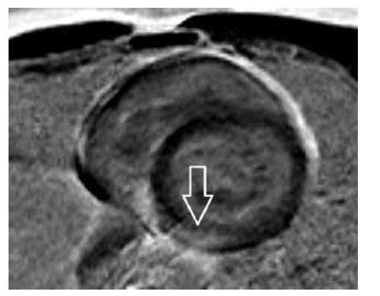Obr. 2c. T1 PSIR sken v krátké ose srdeční s průkazem časného sycení subepikardiálně až intramyokardiálně (šipka) se zesílením naléhajícího perikardu.<br> Fig. 2c. T1W PSIR scan in the short xis with early enhancement subepicardially to intramyocardially (arrow), this figure shows enhancement of the pericardium too,