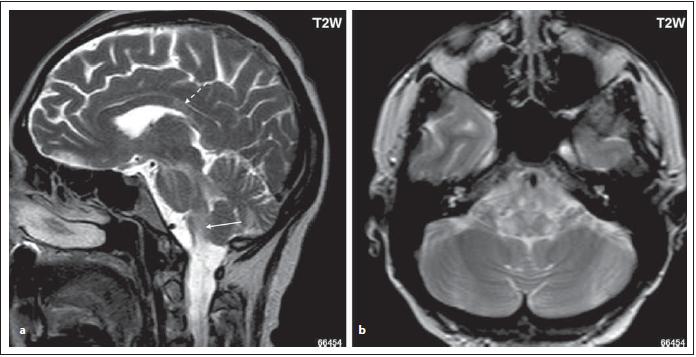 Pacient s MOG-IgGpozNMOSD, T2 vážený obraz, sagitální rovina řezu, zvýšený signál v oblasti dorzolaterální části oblongáty (area postrema, tractus solitarius) (šipka). Dále je patrný zvýšený signál v oblasti středního mozečkového pedunkulu, v oblasti pontu a mezencefalonu (a). Dále je patrné ložisko v oblasti corpus callosum, které je odlišného tvaru než u pacientů s RS (přerušovaná šipka) (a). Ložiska v oblasti dorzolaterální oblongáty, zasahují do nucleus tractus solitarii bilat (b).<br> Fig. 3. MOG-IgGposNMOSD patient, T2-weighted image, sagittal cut, hypersignal lesion in dorsal oblongata (area postrema, tractus solitarius) (arrow); high signal in middle cerebellar peduncle, in pons and mesencephalon (a). Lesions in dorsal oblongata extend to nucleus tractus solitari bilaterally (b). There is a lesion in corpus callosum with a diff erent shape than in MS patients (dashed arrow) (a).