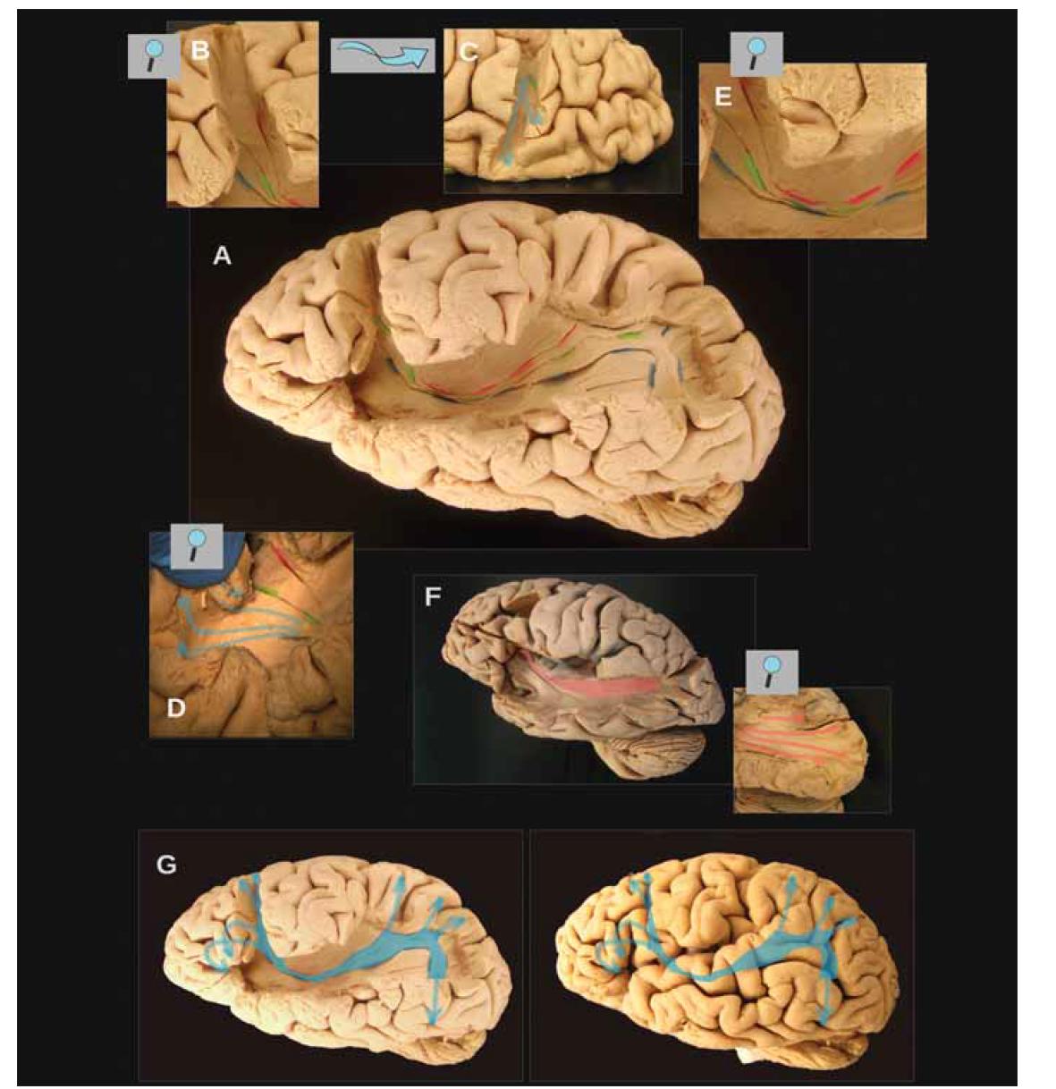 Obr. 4. (A) Fotografie mozku s vypreparovaným IFOF. Vlákna IFOF se nachází mezi červenými a modrými značkami. Vlákna IFOF mají tendenci se dále štěpit do dvou složek [17,18], čímž se vytvoří (zejména směrem k okcipitálnímu a parietálnímu laloku) dvě větve – ventrální (mezi modrými a zelenými značkami), níže uložená větev má své kortikální zakončení v dolním a středním okcipitálním gyru a v temporobazálních oblastech a dorzální, výše uložená větev (mezi zelenými a červenými značkami) má kortikální zakončení směřující do parietálních korových oblastí a do horního okcipitálního gyru. Směrem k frontálnímu laloku má dorzální (horní) větev tendenci vést k dorzálním kortikálním oblastem horního a středního frontálního gyru a větev ventrální (dolní) vede spíše ke strukturám dolního frontálního gyru (pars triangularis, pars orbitalis) a k pólu frontálního laloku. Větve se zde ale do jisté míry překrývají a nejsou tak ostře oddělené jako opačným směrem.<br> (B, C) Zvětšenina zobrazující průběh dorzální (horní) větve IFOF (po odpreparování pars opercularis) směrem k dorzálním kortikálním oblastem horního a středního frontálního gyru a na obrázku C pak vyústění těchto vláken na kůře. Jedná se vlastně o vyústění na tzv. dorzo-laterálním prefrontálním kortexu, kde velmi často při operacích vídáme funkční odpovědi při stimulaci.<br> (D) Detaily kortikáních zakončení ventrální (dolní) větve IFOF na kůře pars orbitalis a pars triangularis, poté co se stáčí laterálním směrem po podběhnutí horního periinzuárního sulku. Rovněž v těchto oblastech vyvolává někdy při awake kraniotomiích elektrická stimulace funkční poruchy.<br> (E) Detail průběhu IFOF inzulou v místě před putamen (které je dosud kryto bílou hmotou tvořenou claustro-kortikálními vlákny)<br> (F) IFOF v preparátu na obrázku A má pouze omezené množství kortikálních zakončení v gyrus occipitalis inferior a žádná v gyrus occipitalis medius. To je docela neobvyklé. Ke správné interpretaci tohoto nálezu je nutné vědět, že kvalita