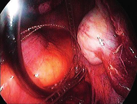 Insertion of Serapro RTD subperitoneally from sacrum to vaginal stump