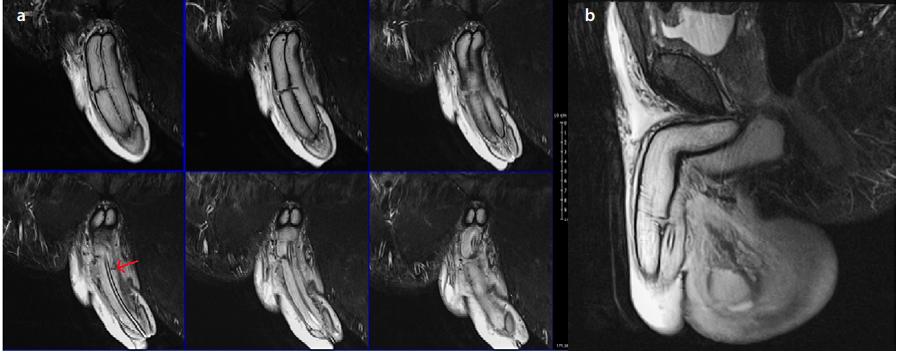 3T MRI penisu<br> Fig. 2. 3T MRI of penis