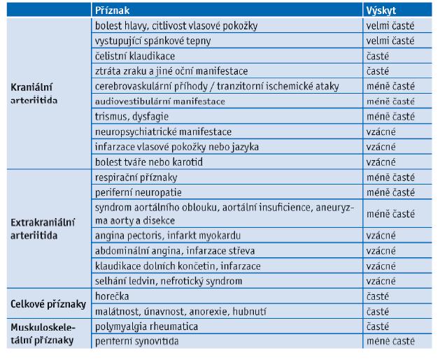Výskyt klinických projevů obrovskobuněčné arteriitidy