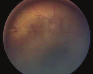 Očné pozadie u pacientky s Marshall/Sticklerovým syndrómom, ĽO. Popis viď tab. č. 2