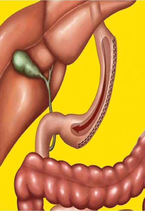 Tubulizace žaludku – sleeve gastrectomy