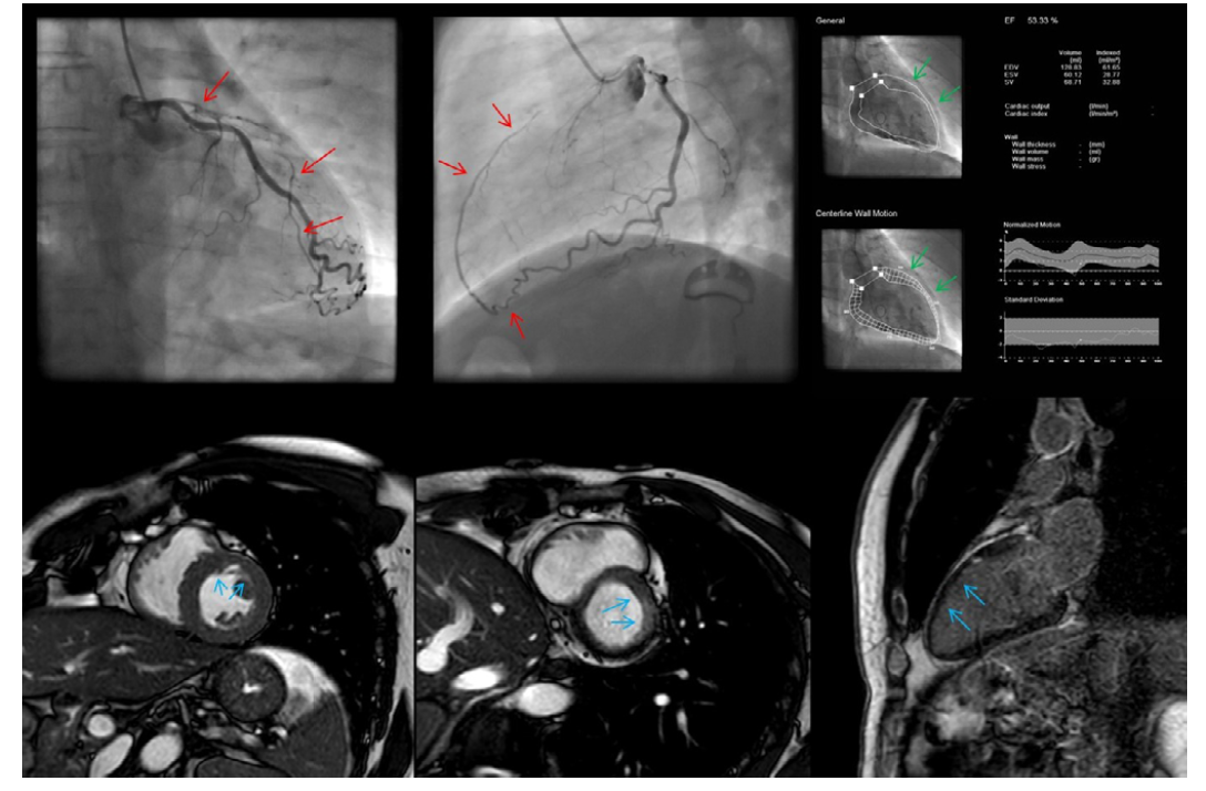 CTO ramus interventricularis anterior (RIA); vlevo nahoře a uprostřed chronický uzávěr RIA s epikardiálním kolaterálním plněním z ramus circumflexus (červené šipky); vpravo nahoře ventrikulogram se zachovanou kinetikou přední stěny levé komory a ejekční frakcí 53 %; dole snímky z magnetické rezonance potvrzující zachovanou kinetiku levé komory se subendokardiální ischémií v dané oblasti, vpravo dole pak absence sycení myokardu v LGE sekvenci – viabilní oblast přední stěny (modré šipky) – CTO indikované k intervenci