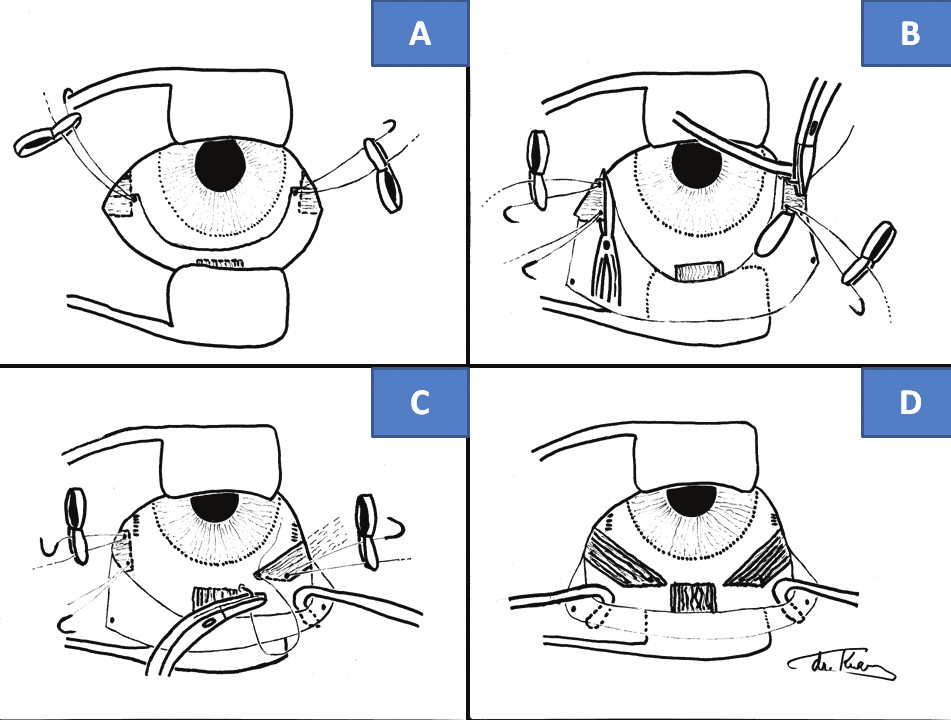 """Surgical technique of """"anticlockwise"""" transposition according to Knapp procedure: scope of incision of bulbar conjunctiva (A), fixation of sutures and cutting off of horizontal rectus muscles (B), fixation of horizontal rectus muscle by tendon of inferior rectus muscle (C), fixing of both horizontal rectus muscles on level of tendon of inferior rectus muscle (D)"""