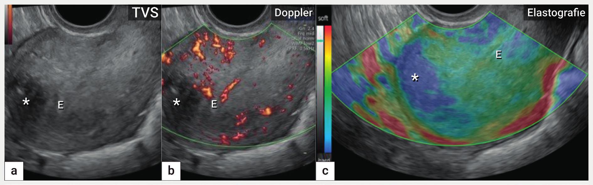 Elastografie<br> Ultrazvukové zobrazení dělohy (B-mode, škála šedi) s koncentricky zesílenou přední a zvláště zadní stěnou na podkladě adenomyózy (a), zobrazení barevným dopplerem s nezměněnou perfuzí v přední a zadní stěně děložní (b), elastografie s označením fibrotických změn hvězdičkou (modrá oblast) uložených převážně ventrálně ve fundu (c). E – endometrium
